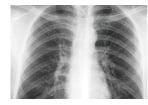 تصویر پزشکی