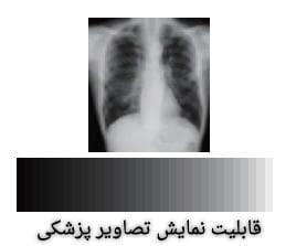 پروژکتور با تصویر پزشکی