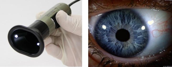 میکروسکوپ دیجیتال چشم پزشکی